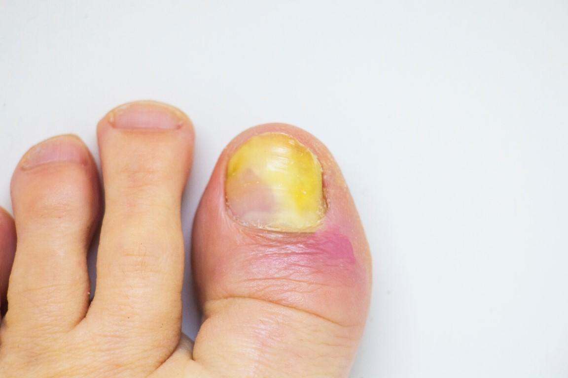 mycose des ongles des pieds