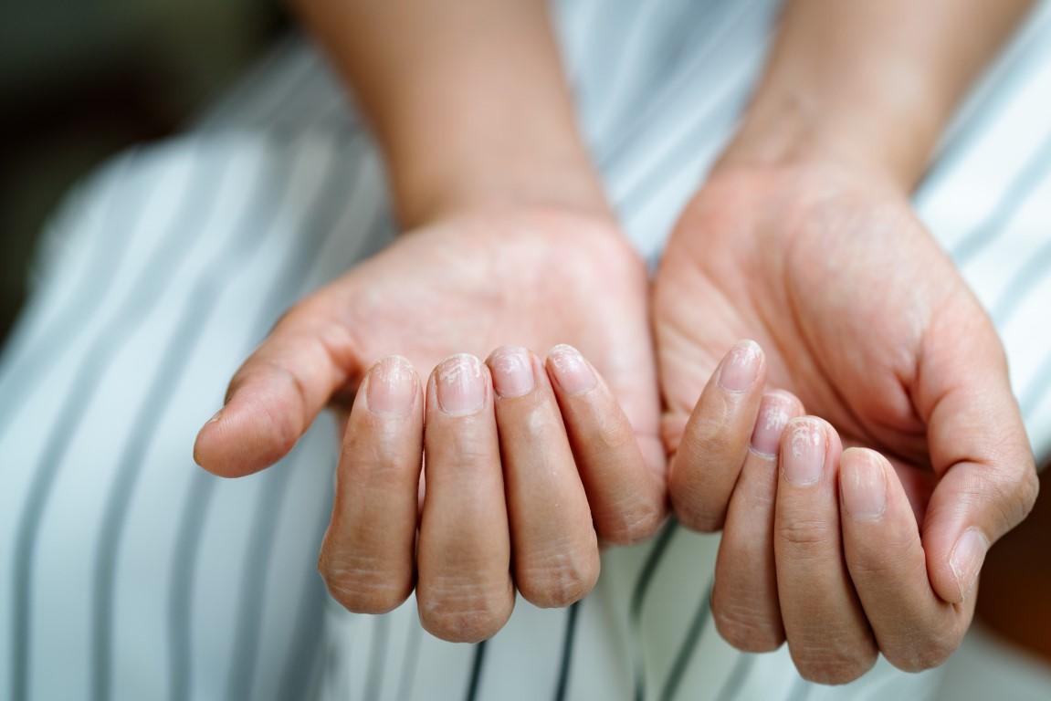 soigner des ongles striés