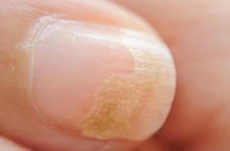 symptômes du psoriasis de l'ongle