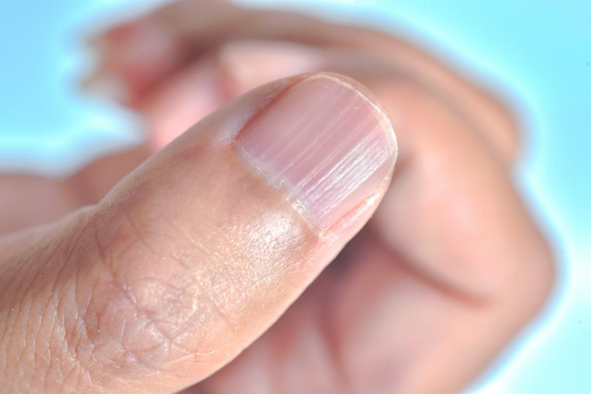 zoom sur un ongle strié